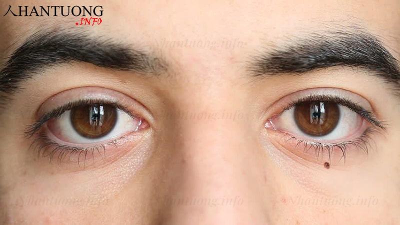 Nốt ruồi nằm dưới mắt trái của nam